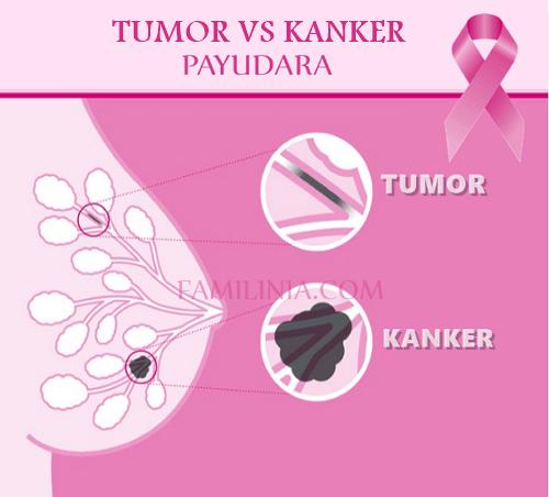 jenis-jenis kanker payudara