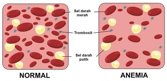 gejala anemia pada wanita