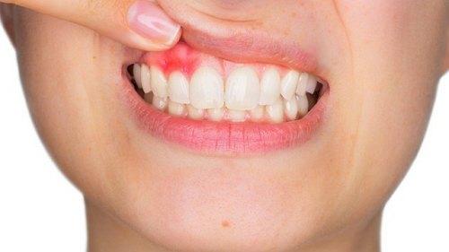 infeksi gigi