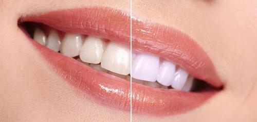 khasiat lidah buaya untuk memutihkan gigi