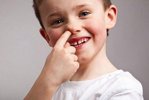 penyebab mimisan pada anak