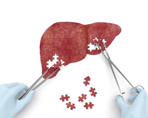 membersihkan liver