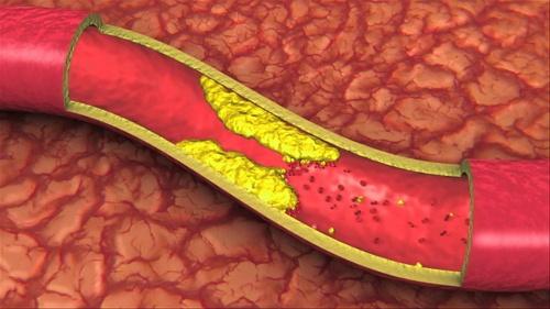 mencegah atherosklerosis