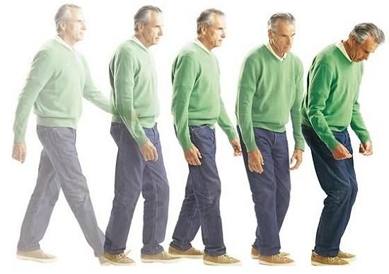 menurunkan risiko Anda terkena Parkinson