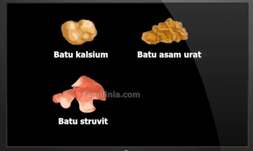 penyebab batu ginjal dan jenis jenis batu ginjal